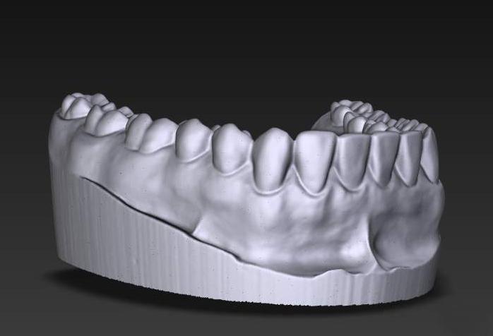 3D_dental_scan