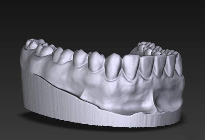 3D_dental_scan